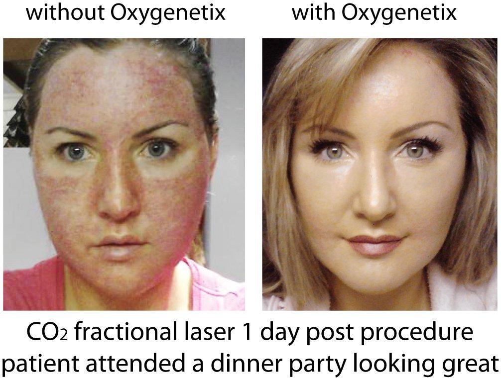 Oxygenetix2